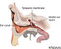 Ear tube insertion - Series
